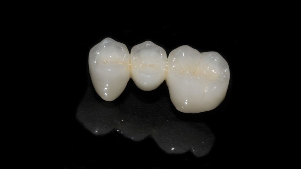 Dental Lab - Our Porcelain Fused to Metal