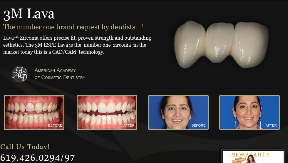 San Diego Dental Lab provides cosmetic solutions for quality